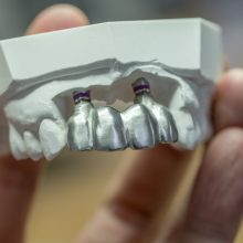 The 5 Types of Dentures Everyone Needs to Know About