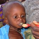 Treatment of Child Malnutrition in Somalia
