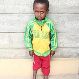 Provide a Life-Changing Mintesanew Fikadu Clubfoot Surgery