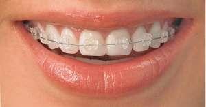 solucion dental