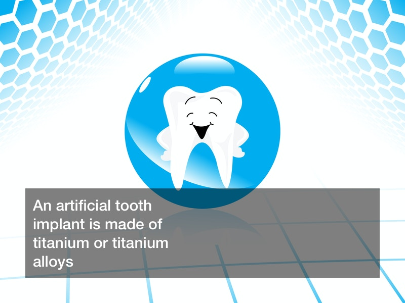 Artificial tooth implant