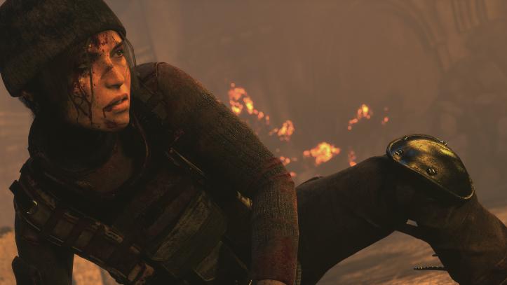 Rise of the Tomb Raider - Lara injured