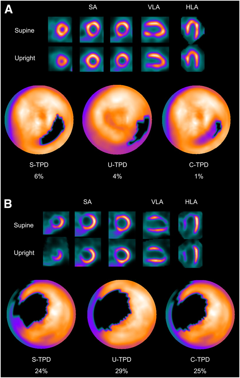 Stress Rest Myocardial Perfusion Imaging Mpi Snmmi