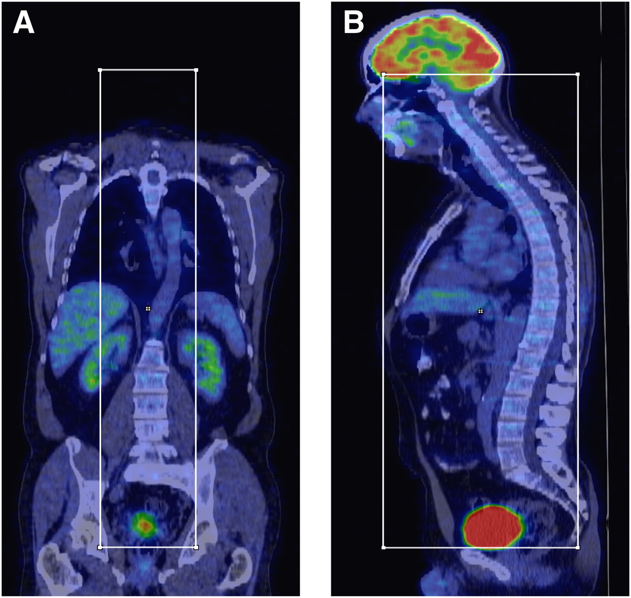 Plaque detection Using FDG PET and PETCT