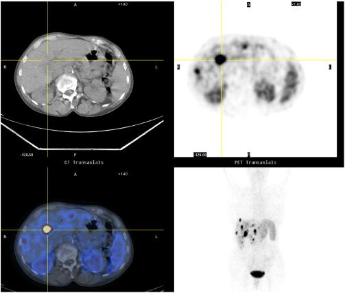 Transaxial 68Ga-DOTANOC PET/CT Scans