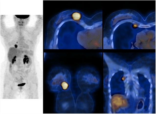 Molecular Imaging and Breast Cancer Fact Sheet Image
