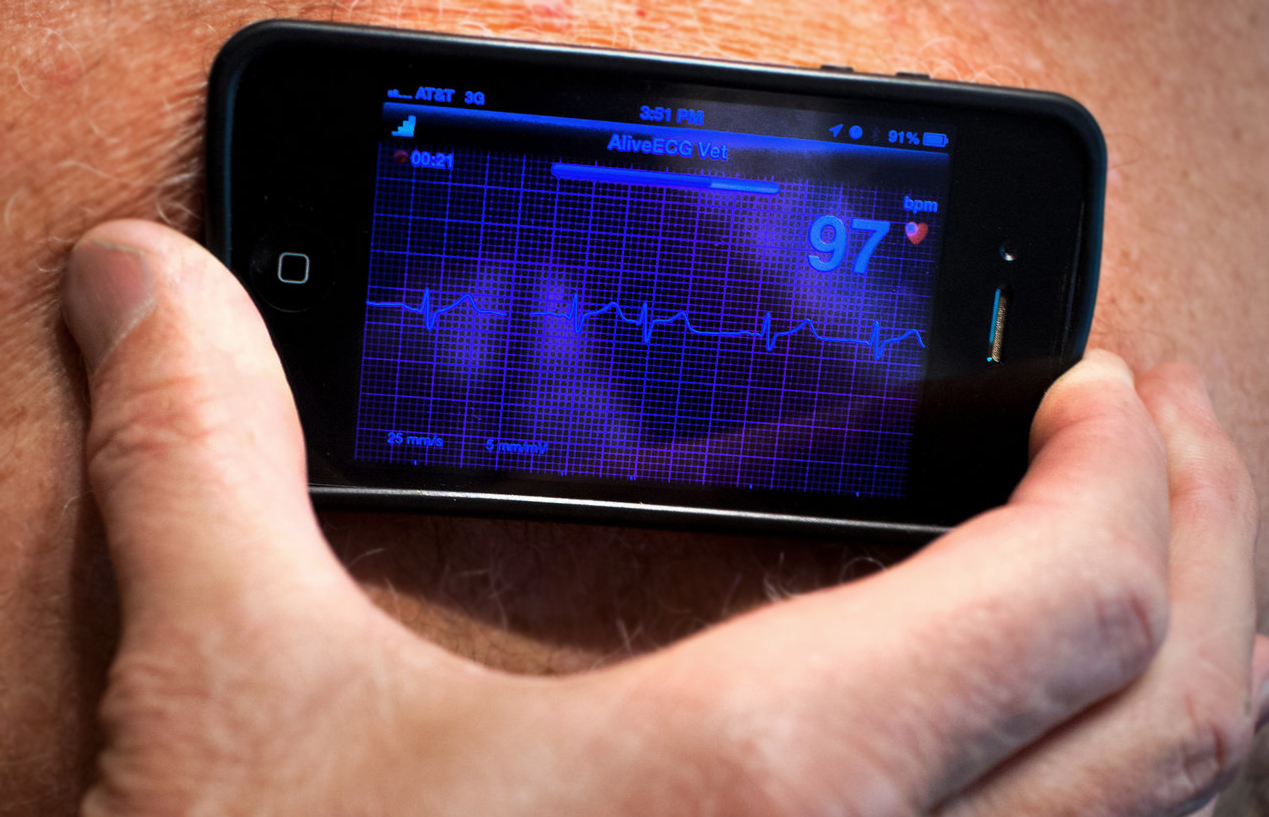 Now You Can Detect a Serious Heart Condition Using Your Smartphone