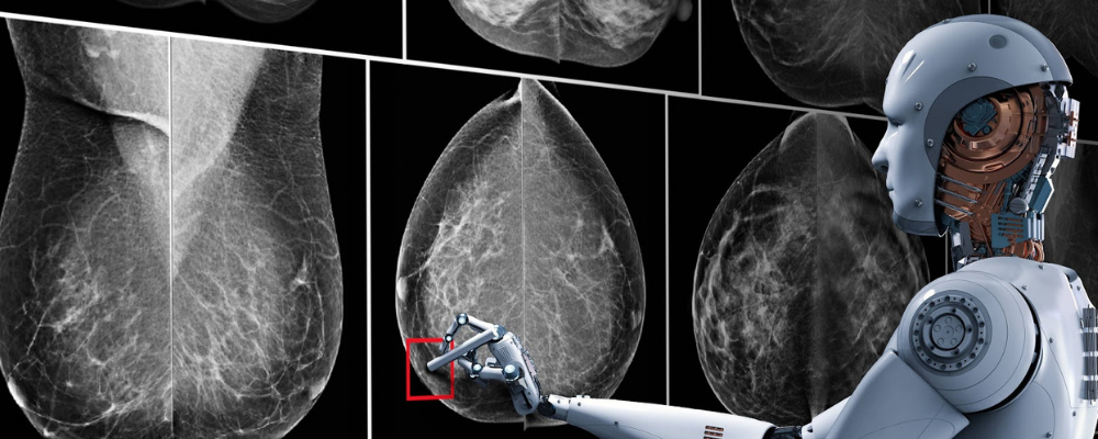 Artificial Intelligence & Mammograms: Improving Women's Lives One Scan at a Time
