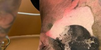 Woman showing her burns after exploding vape pen
