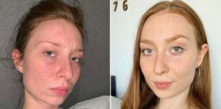 Ivana Kostova changed her diet to become vegan and this way clearing out her face skin from acne