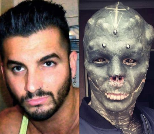 Frenchman Anthony Loffredo got his nose removed and tongue split so he can look like a black alien