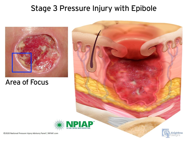 Stage 3 Pressure Injury with epibole