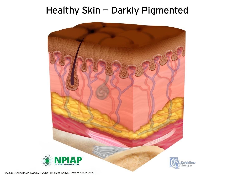 Healthy Skin- Darkly Pigmented