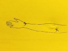 arm diagram