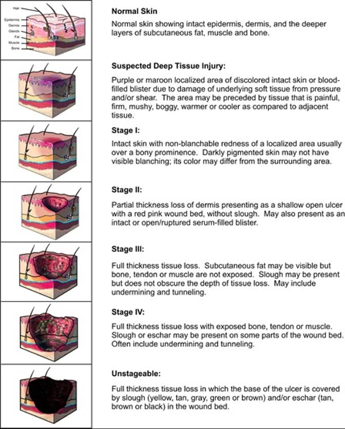 Pressure injury stages diagram