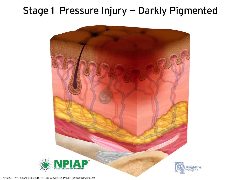 Stage 1 Pressure Injury - Darkly Pigmented