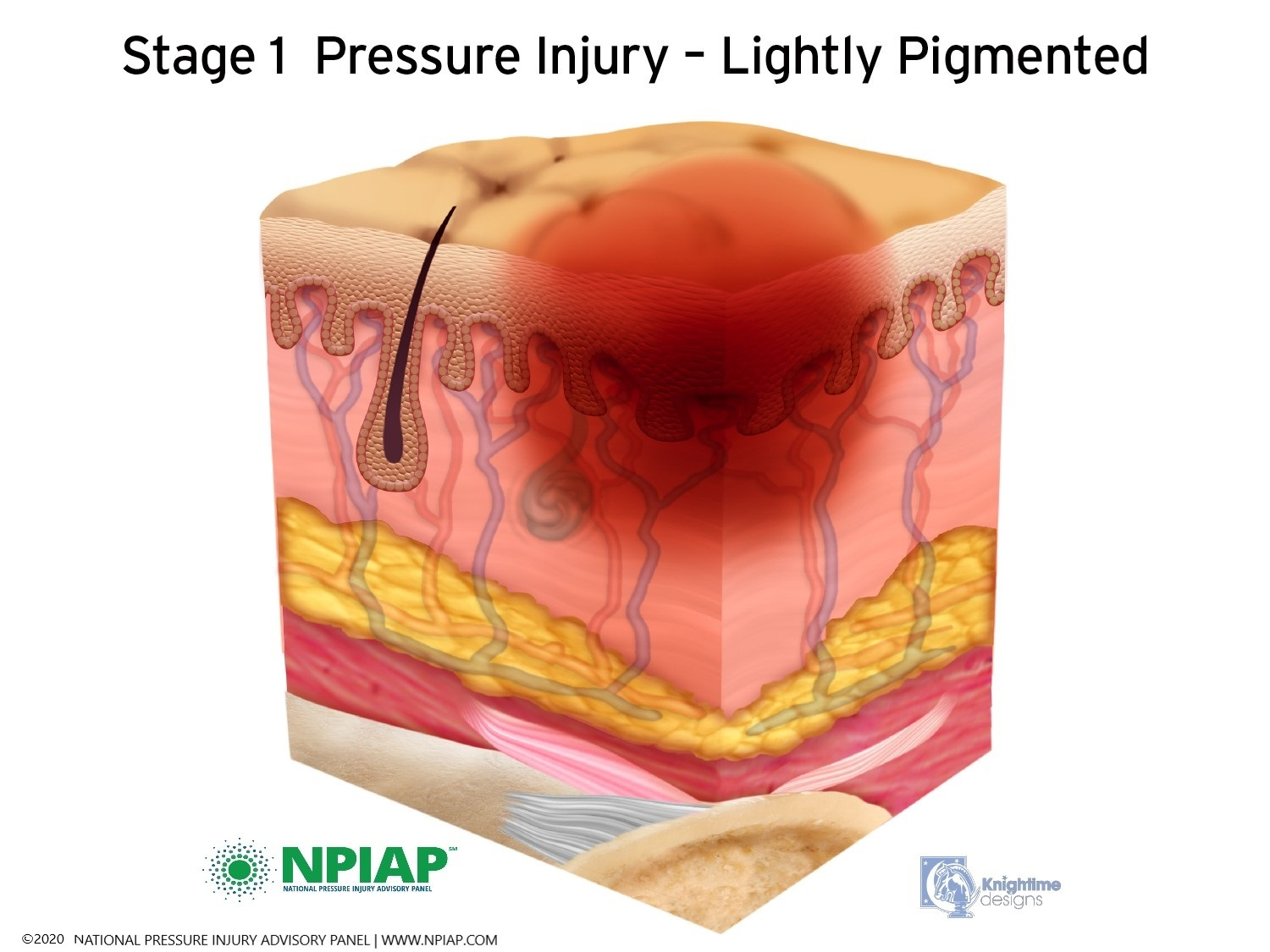 Stage 1 Pressure Injury - Lightly Pigmented