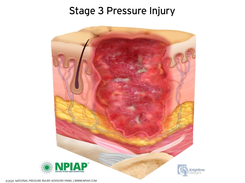 Stage 3 Pressure Injury