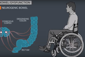 Avoiding Bowel Complications-Part I
