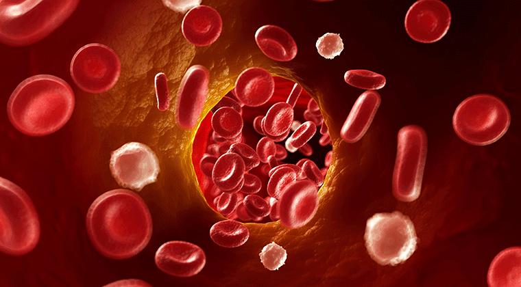 deep vein thrombosis - reeve foundation, Human Body