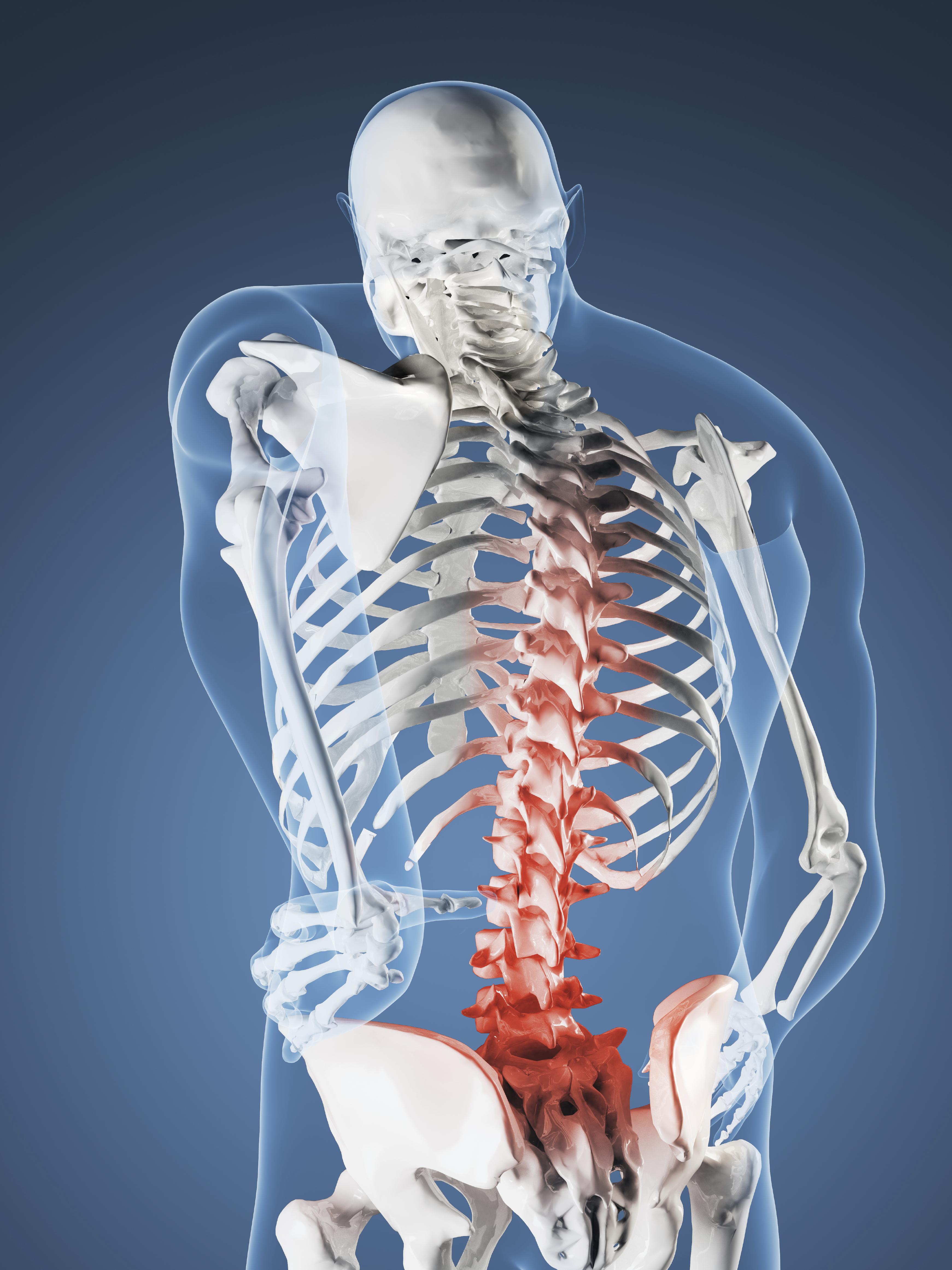 Graphic of skeleton