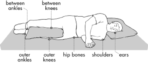 Graph Areas Especially Susceptible to Pressure Injury