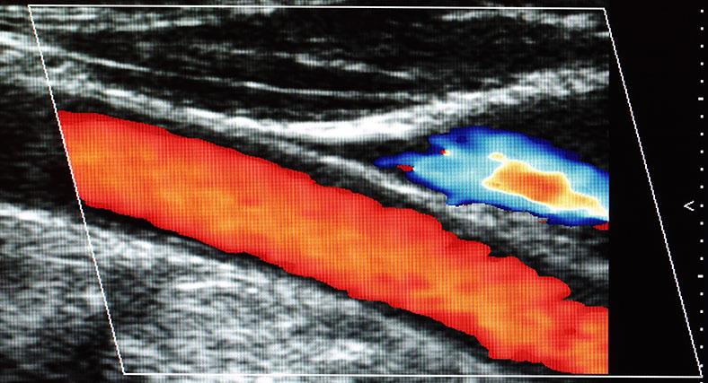 caroitd-artery-renue-health