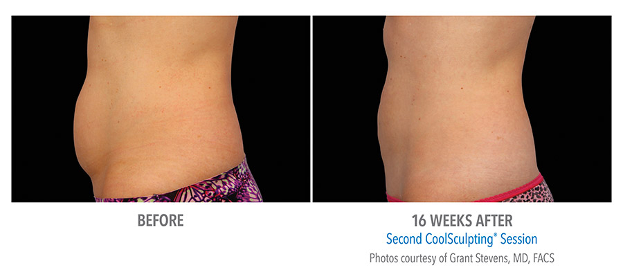 coolsculpting female before and after