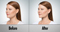 female_before_after_kybella-60×32