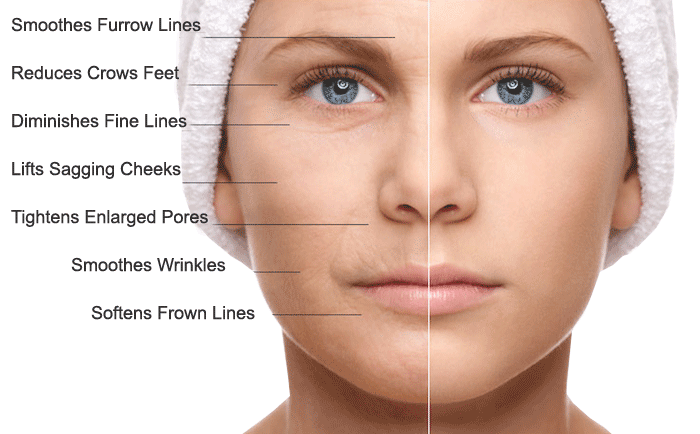 microneedling skin firming, scar reduction, fine lines and wrinkles