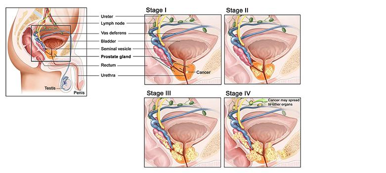 renue-heath-prostate-cancer-treatment