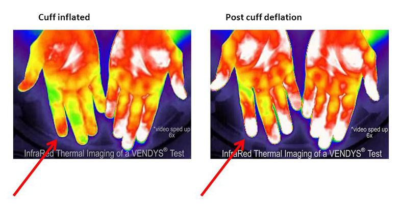 vendys-infrared-test-image