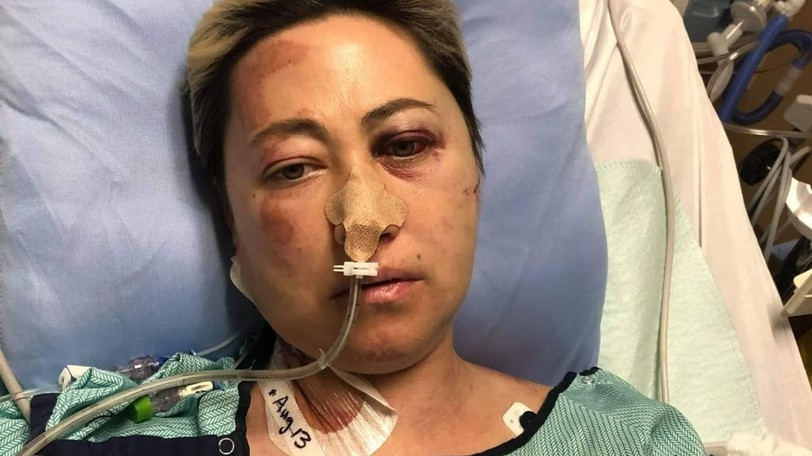 Victoria Becker has been in the hospital since early August, when a car crash in Saint John killed her husband Scott Guthrie and left her with serious injuries, according to friends.