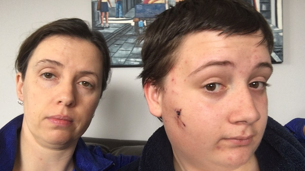Sherisse Redman is determined to see that someone is charged after three dogs in the Burtt's Corner area attacked her 15-year-old son David, right, who exhibits some of the injuries he incurred in the incident.