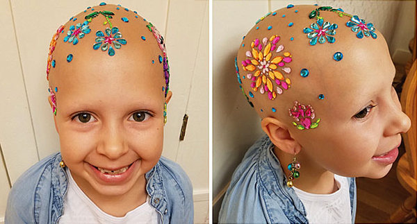 7-Year-Old Girl With Alopecia Shows How Baldness Is Beautiful