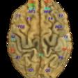 MindBigData the MNIST of Brain Digits