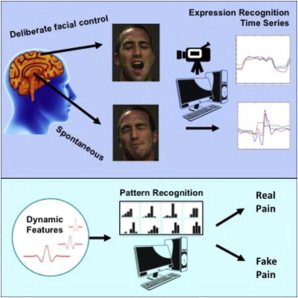 AI-systeem herkent échte pijn beter dan mensen.