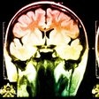 There's a big problem skewing neuroscience - we're not all white and middle class - ScienceAlert