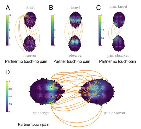 What inter-brain coupling looks like