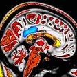'Mindful people' feel less pain; MRI imaging pinpoints supporting brain activity