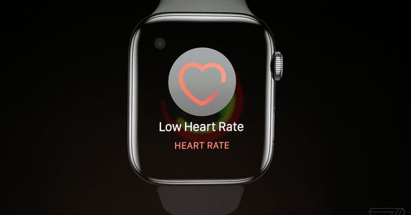 Why a new Apple Watch with EKG matters