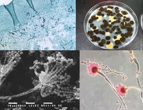 Aspergillus | Neuropsychologia.org - portal wiedzy neuropsychologicznej