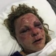 Tammy Lawrence-Daley survived a savage attack on vacation in the Dominican Republic - The Washington Post