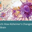 "ALZDDS on Twitter: ""Watch this [VIDEO]: How Alzheimer's Changes the Brain https://t.co/YajWK67KYK… """