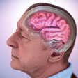 Alzheimer's Disease Fact Sheet