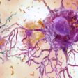 Could Alzheimer's Begin With Bacteria?   NOVA   PBS   NOVA   PBS