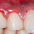 Gum Disease Bacteria Found in Alzheimer's Brains
