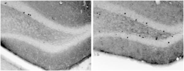 Nové neuróny vytvorené v hipokampe myší – kontrolná skupina (vľavo), skupina s obohateným prostredím (vpravo), ktorá prejavila intenzívnejšie bádacie správanie a individualitu zdroj: kurzweilai.net credit: CRTD/DZNE/Freund