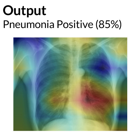 AI looking at a chest X-ray