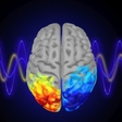 Controlling Attention with Brain Waves